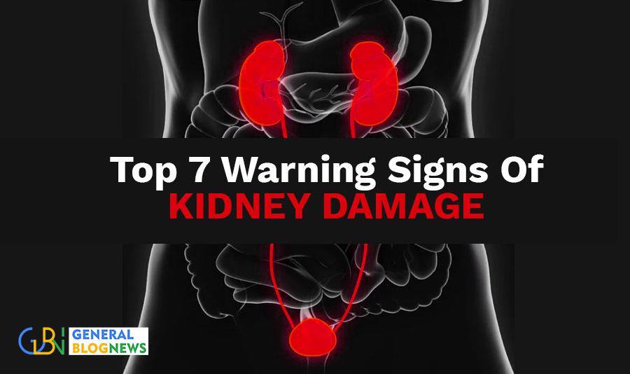 Top 7 Warning Signs Of Kidney Damage
